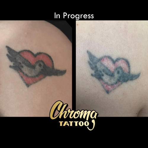 Laser Tattoo Removal in West Bloomfield - Affordable