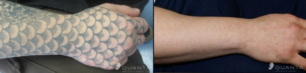 Laser Tattoo Removal in West Bloomfield - Affordable   Chroma Tattoo