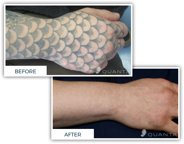 Michigan Tattoo & Piercing Shop: New Art, Laser Removal | Chroma Tattoo - image-content-before-after